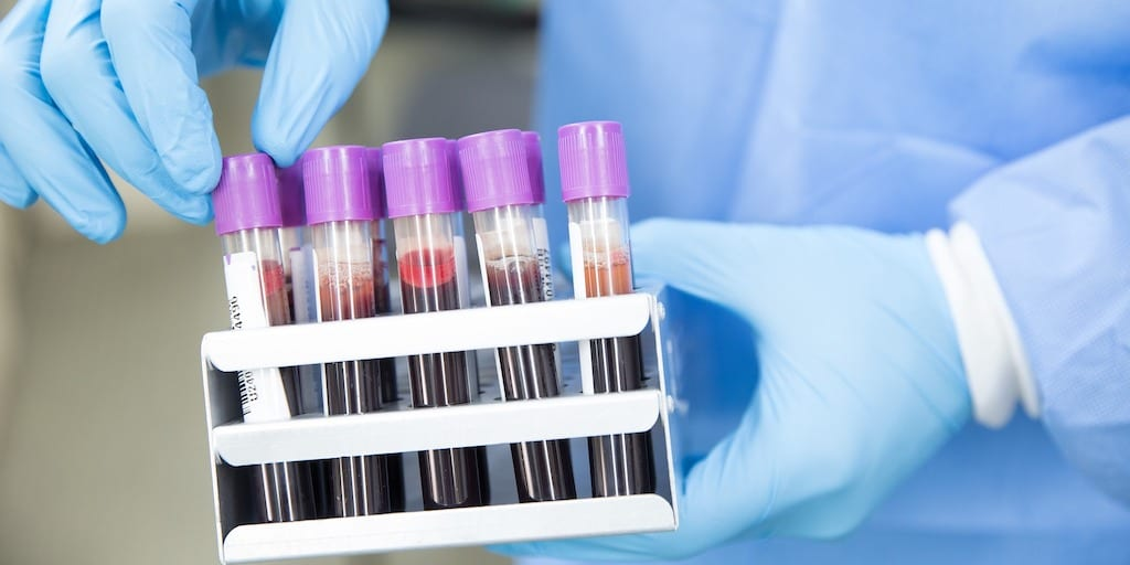 New lab tests to help vegans track health